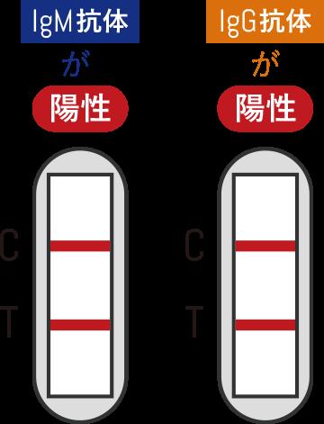 IgM抗体が陽性、IgG抗体が陽性