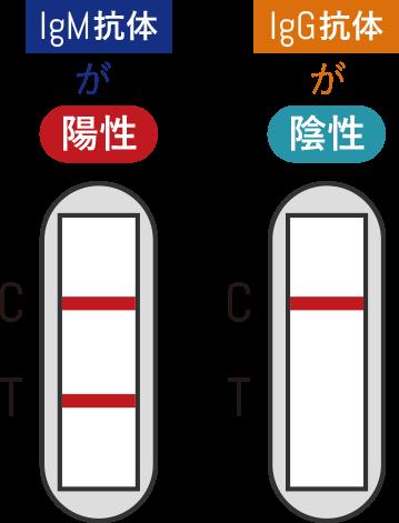 IgM抗体が陽性、IgG抗体が陰性